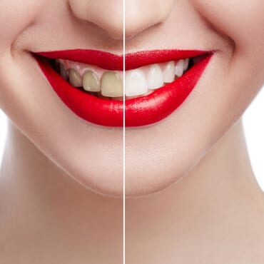 Before and after image of women wearing veneers with red lips